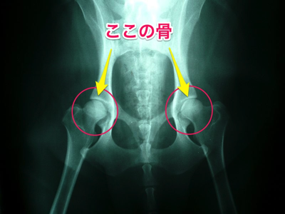 800px Normal canine hips
